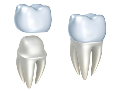 Reasons Why a Dental Crown May Come Out On Its Own
