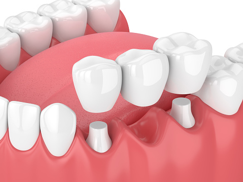 Fixed dental bridges and implants at Wanserski Dental Center for Complex Dentistry