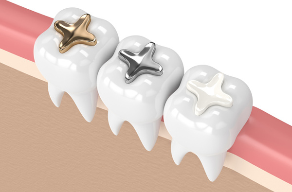 Rendering of teeth with 3 composite filling materials at Wanserski Dental Center