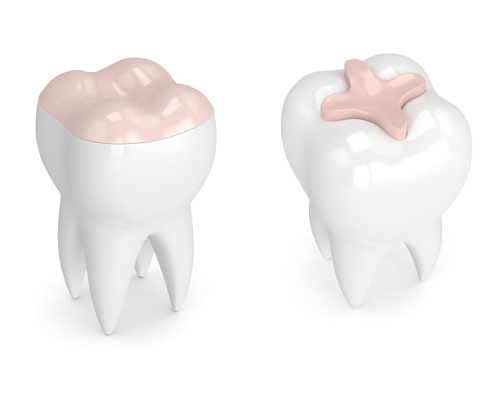 What Is a Dental Inlay and Why Might You Need It?